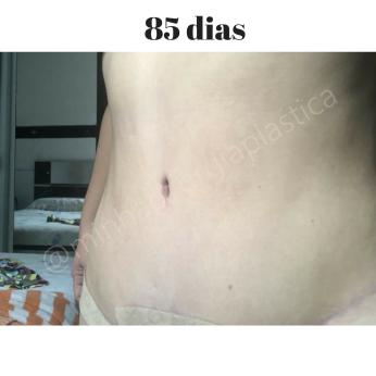 Antes (15)