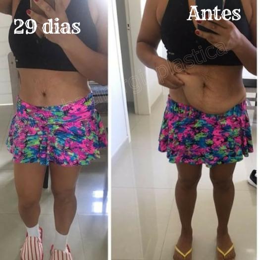 Antes (10)