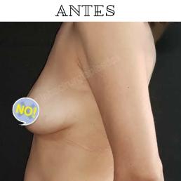 Antes (7)