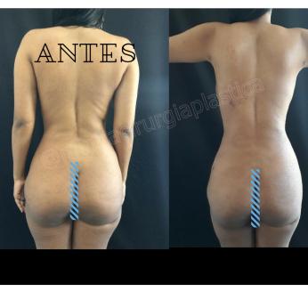 Antes (9)