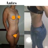 Antes (1)