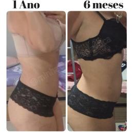 Antes (5)