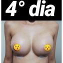 Antes (12)