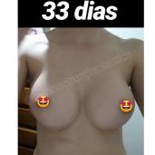 Antes (3)