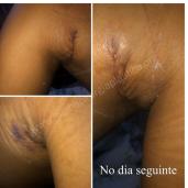 Antes (2)