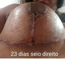 Antes (8)
